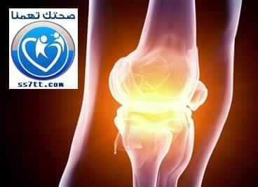 Arthritis-ss7tt